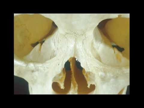 Rhinoplasty & Broken Nasal Bones