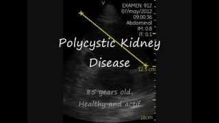 Elder Polycystic Kidney Disease. Vieux Reins Polykystiques.vscan.