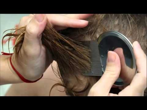 Bug Bites:  Scabies, Lice & Bedbugs