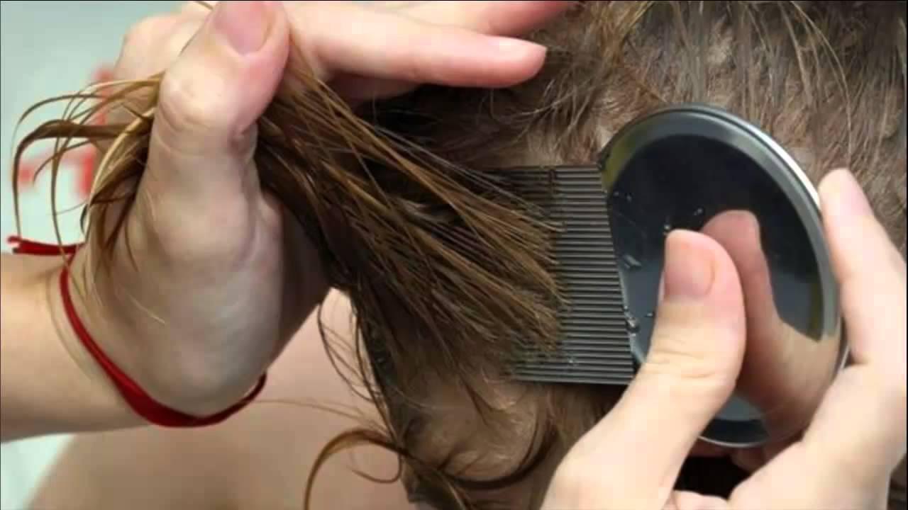 Human Fleas Out Hair