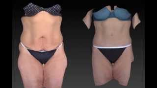 Tummy Tuck 3D Before and After-06
