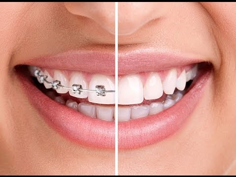 invisalign clear aligner - invisible braces treatment in ahmedabad india