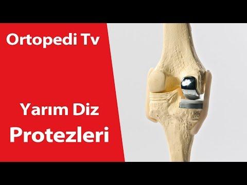 Yarım Diz Protezi - Ortopedik Bilgi