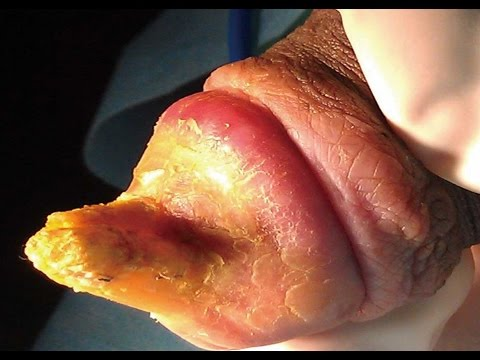 How to Get Rid of HPV Warts Fast & Naturally at Home