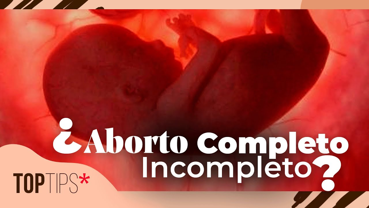 cuanto+dura+el+sangrado+despues+de+un+aborto+con+cytotec