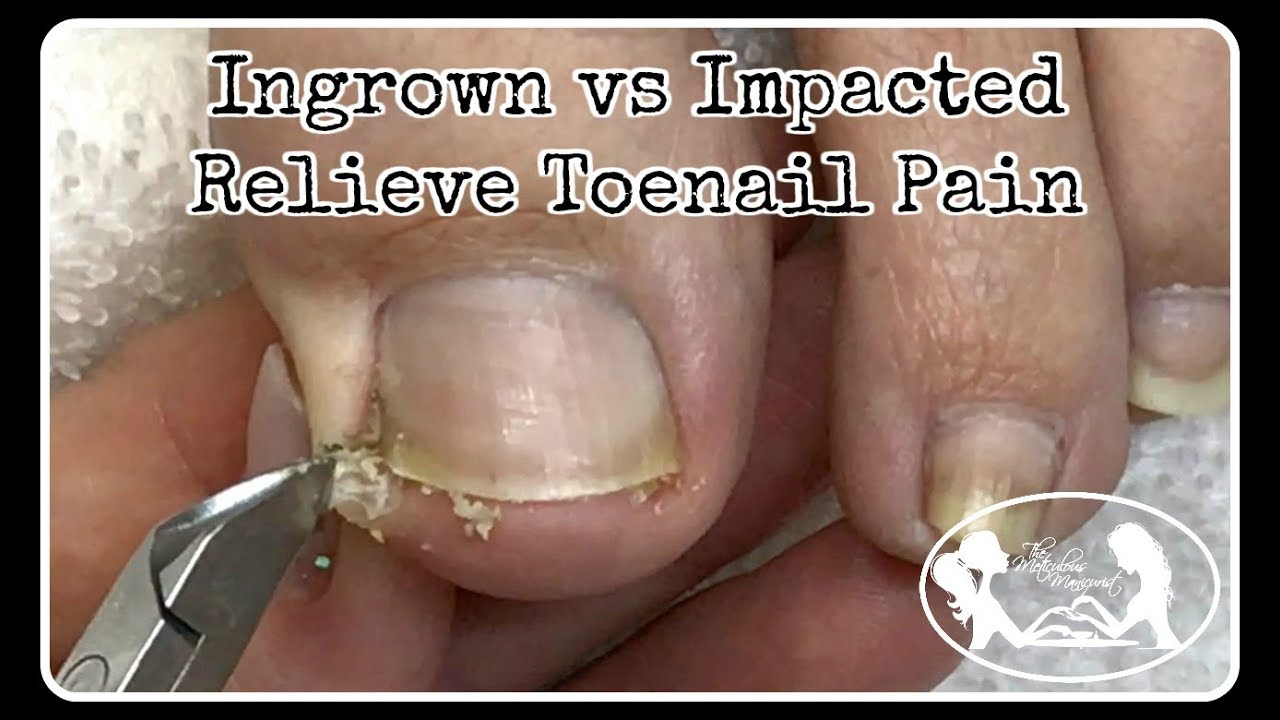 Ingrown Toenail And Impacted Toenail Relief And Prevention