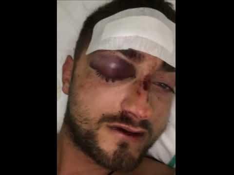 Sapri, poliziotto ferito a Viareggio. Arrestato il pusher che l'ha aggredito.