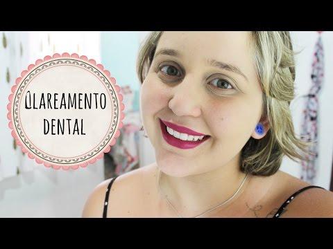Clareamento Dental - Whiteness Simple 16%