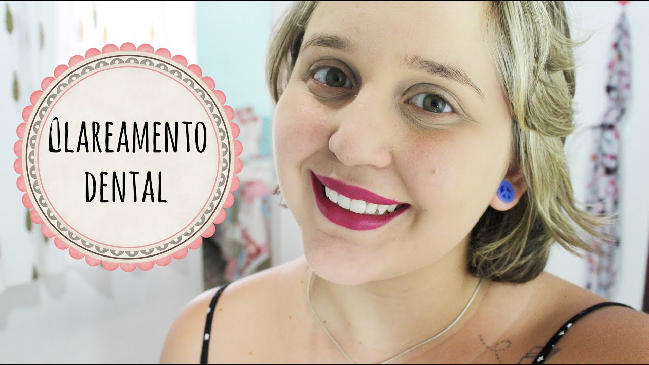 Clareamento Dental Whiteness Simple 16 Youtube