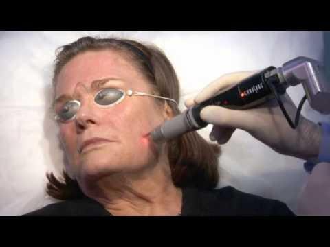 Picosure Skin Revitalization Benefits and Actual Treatment