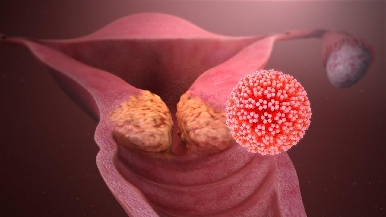 glande con papiloma virus