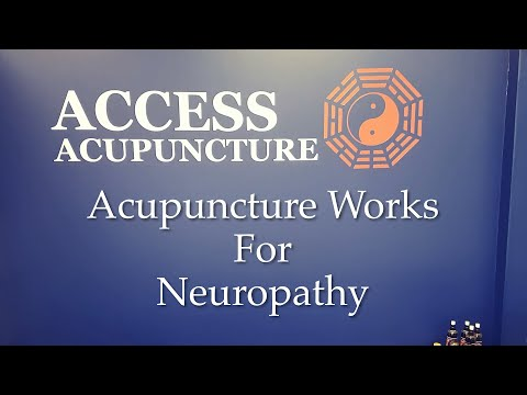 Acupuncture Works For Neuropathy!