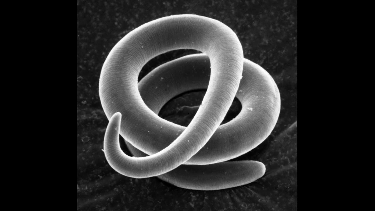 Trichinosis etiológiája