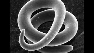 az emberi testben élő paraziták elleni gyógyszerek