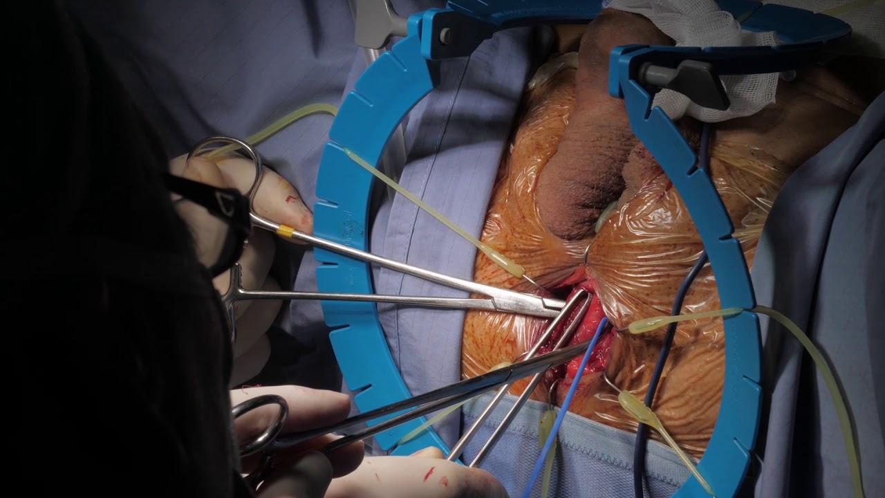 Sfintere Uretrale AUS800 prima di  Protesi Idraulica AMS700 dopo Prostatectomia Radicale