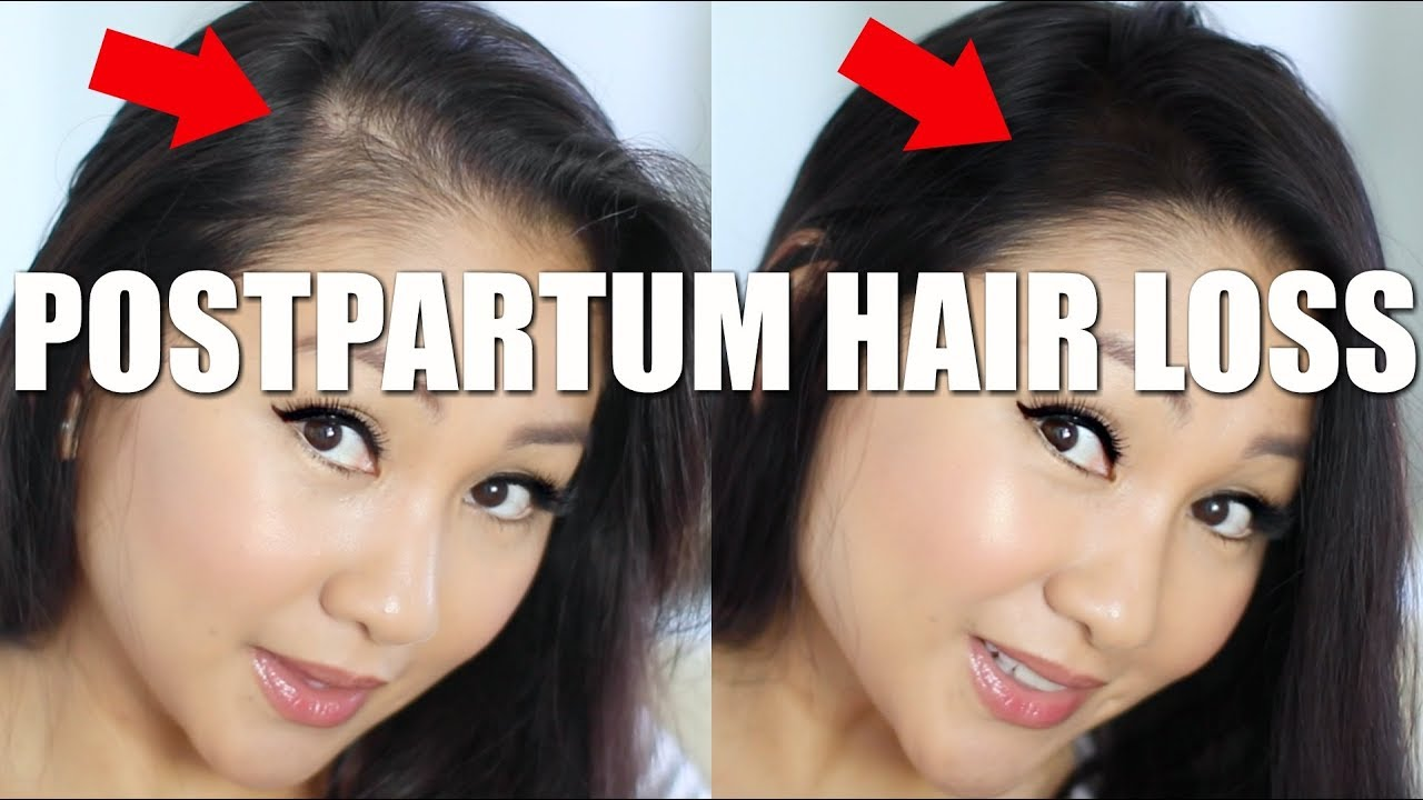 How To Hide Postpartum Hair Loss Youtube