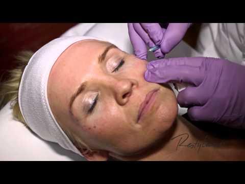 Dr Berne Harmony Program Oslo Azzalure (Botox) Restylane Tear Trough