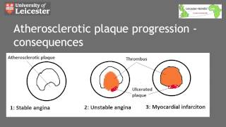 Atherosclerotic Cardiovascular Disease: Pathology and Prevention