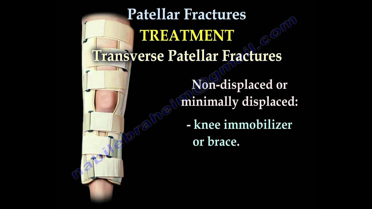 Patellar Fractures - Everything You Need To Know - Dr ...