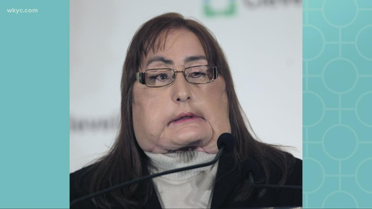 Connie Culp, first US near-total face transplant recipient, dies at 57 ...
