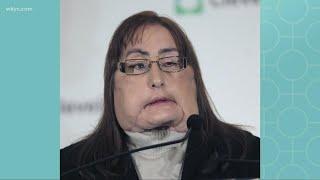 Connie Culp, First Us Face Transplant Recipient, Dies At 57