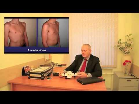 килевидная деформация грудной клетки, лечение