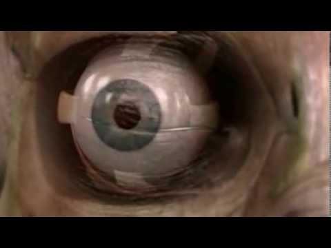 La Vista (DC- Cuerpo Humano al Límite) - Completo
