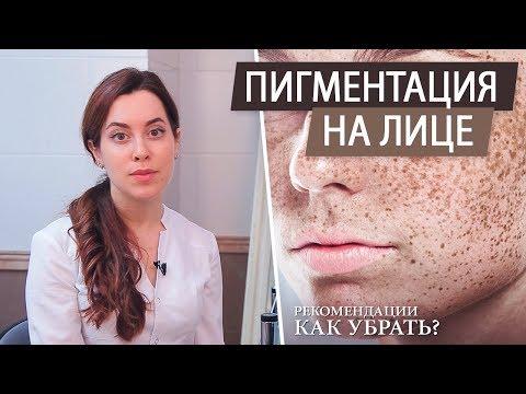 Рекомендации косметолога. Пигментные пятна на лице – причины и как избавиться