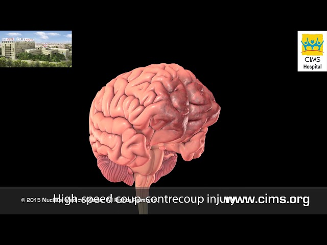 Mild Traumatic Brain Injury - CIMS Hospital