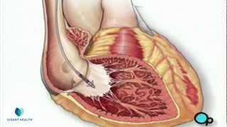 Permanent Pacemaker Implant Vidant PreOp® Patient Education