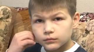 Андрей Митин надо помочь! Фенилкетонурия. Ребенка лишили инвалидности.