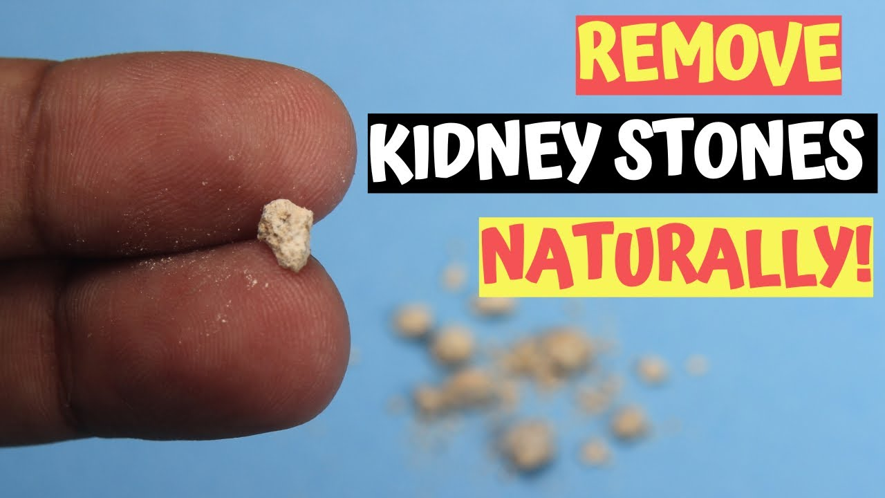 2 Best Remedies To Remove Kidney Stones Naturally In Men | Kidney Stones Treatments | 100% Helps!