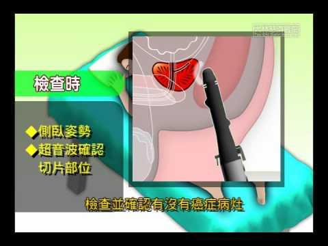 經直腸超音波前列腺切片檢查 - YouTube