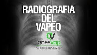 Radiografia del Vapeo - RESULTADOS DE LA ENCUESTA / LTDM cap. 76