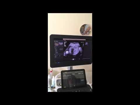 УЗИ во время беременности. Запись эфира