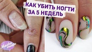 Боевая клиентка :) Преображение ногтей: СОДРАННЫЙ гель лак, укрепление ногтей. Простой маникюр