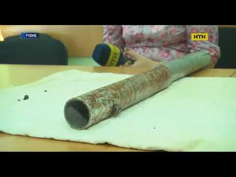 В Ровно медики коллекционируют предметы, которые вытащили во время операций из тел украинцев
