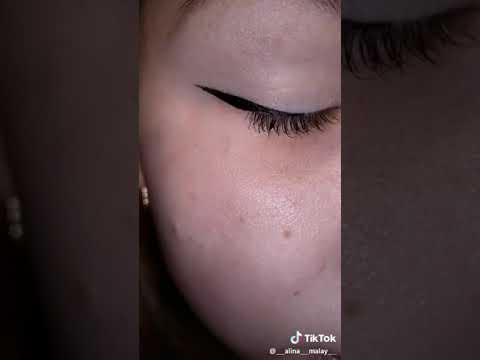 Девушка залила глаз тушью, и он стал чёрным!