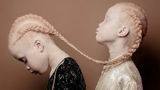 10 Gêmeos Incríveis Que Você Nunca Viu Em Sua Vida