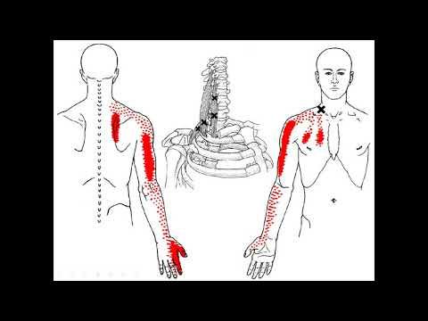 ตำราความเจ็บปวด เรื่อง กล้ามเนื้อพังผืดอักเสบเรื้อรัง myofacial pain