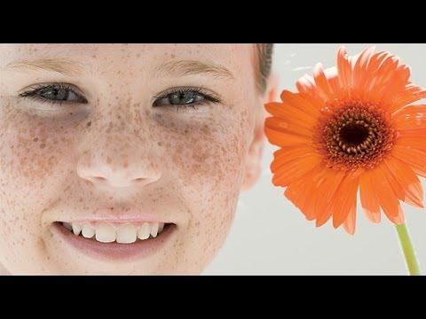 Отбеливающие маски для кожи лица от пигментных пятен в