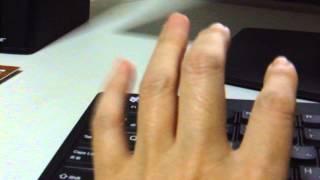 シェーグレン症候群神経症状(手)
