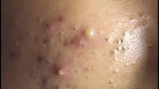 Acne@remove by hand | Becareful | Because can have virus from tool.