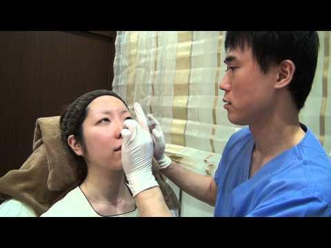 高須クリニック 涙袋のヒアルロン酸注射 治療風景 注射直後の腫れ 内出血痛み経過ダウンタイムについて説明