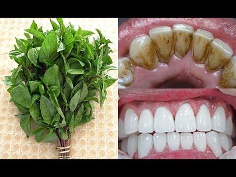Làm trắng răng tại nhà cực hiệu quả