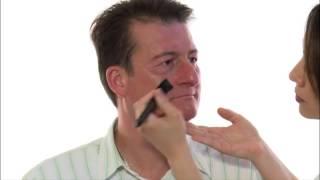 Maquillage médical - Psoriasis visage: peau sèche avec rougeurs et peu de squames