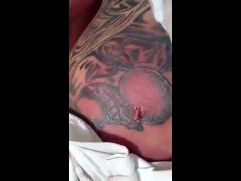 Tatuaje Infectado En La Espalda Youtube