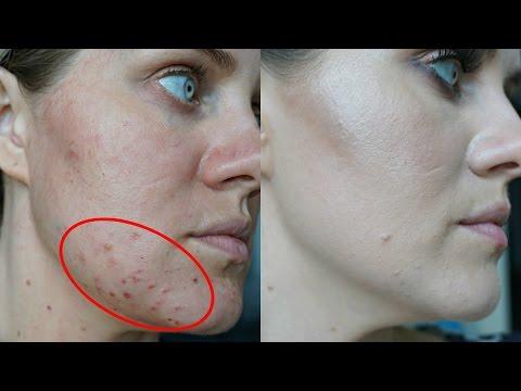 I Got Rid Of Acne Manuka Honey Experiment 8 Days Worked Youtube