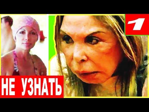 ЖУТЬ!!! ЗВЁЗДЫ после НЕУДАЧНОЙ ПЛАСТИКИ! - Видео онлайн