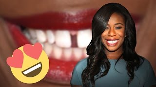The Moment Uzo Aduba Learned To Love Her Gap